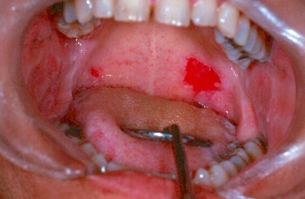 Ulcers -Photo