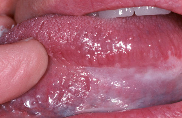 Diagnostic Changes in Mucosa-Photo